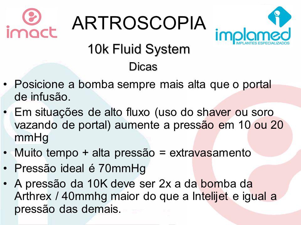 ARTROSCOPIA Posicione a bomba sempre mais alta que o portal de infusão. Em situações de alto fluxo (uso do shaver ou soro vazando de portal) aumente a