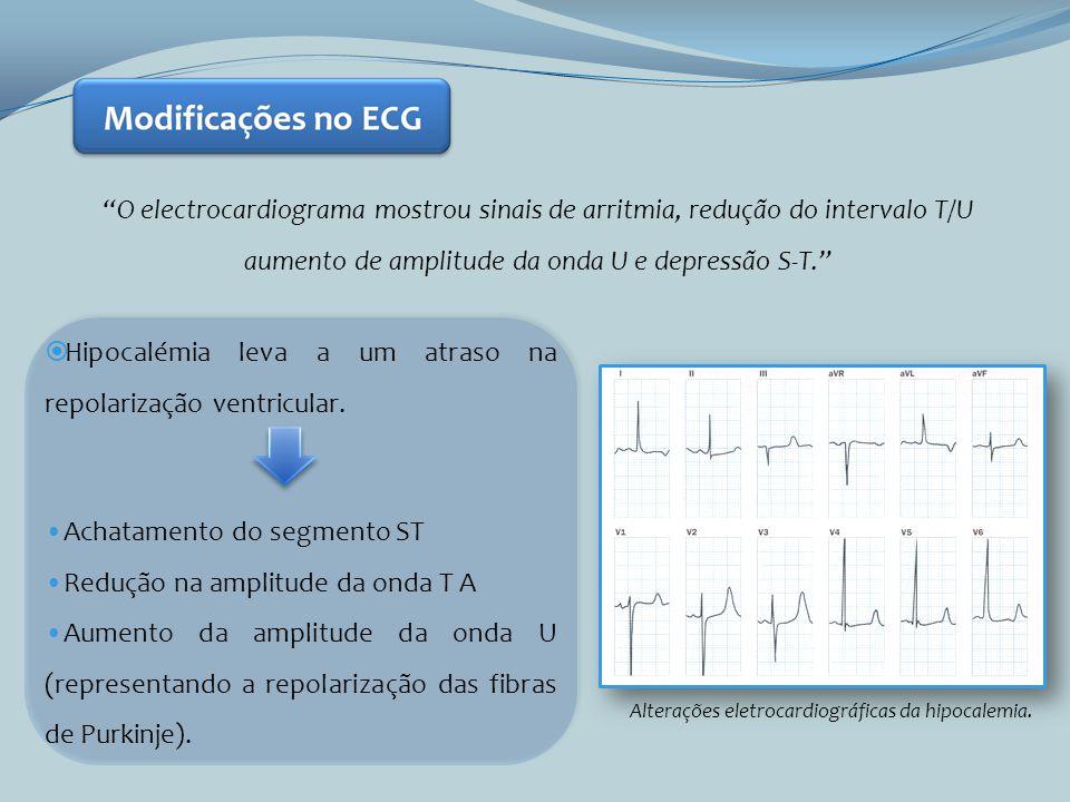 O electrocardiograma mostrou sinais de arritmia, redução do intervalo T/U aumento de amplitude da onda U e depressão S-T. Alterações eletrocardiográfi