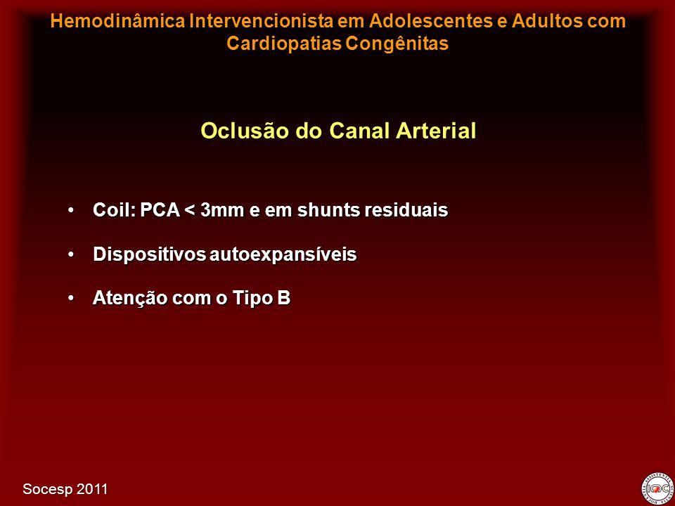 Coil: PCA < 3mm e em shunts residuaisCoil: PCA < 3mm e em shunts residuais Dispositivos autoexpansíveisDispositivos autoexpansíveis Atenção com o Tipo