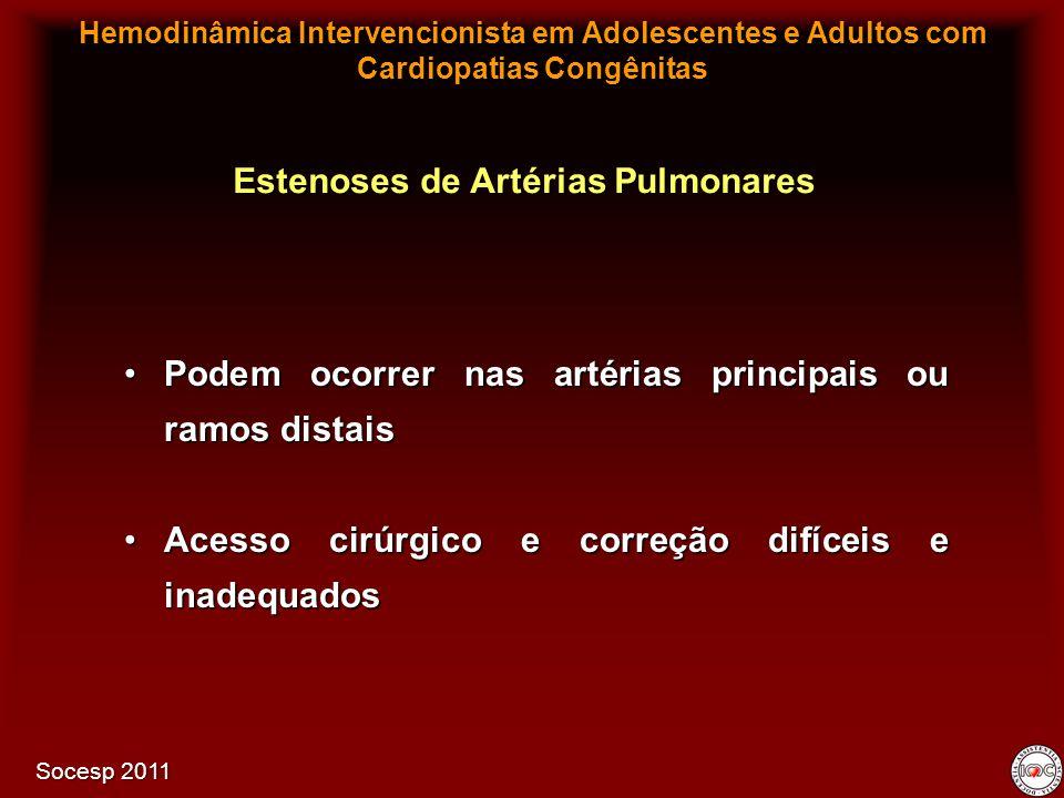 Podem ocorrer nas artérias principais ou ramos distaisPodem ocorrer nas artérias principais ou ramos distais Acesso cirúrgico e correção difíceis e in