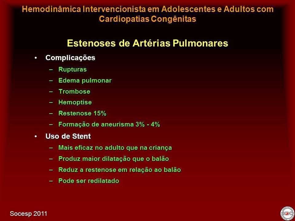 ComplicaçõesComplicações –Rupturas –Edema pulmonar –Trombose –Hemoptise –Restenose 15% –Formação de aneurisma 3% - 4% Uso de StentUso de Stent –Mais e