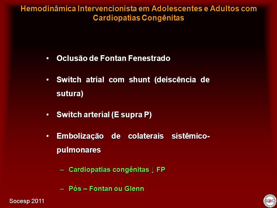 Oclusão de Fontan FenestradoOclusão de Fontan Fenestrado Switch atrial com shunt (deiscência de sutura)Switch atrial com shunt (deiscência de sutura)