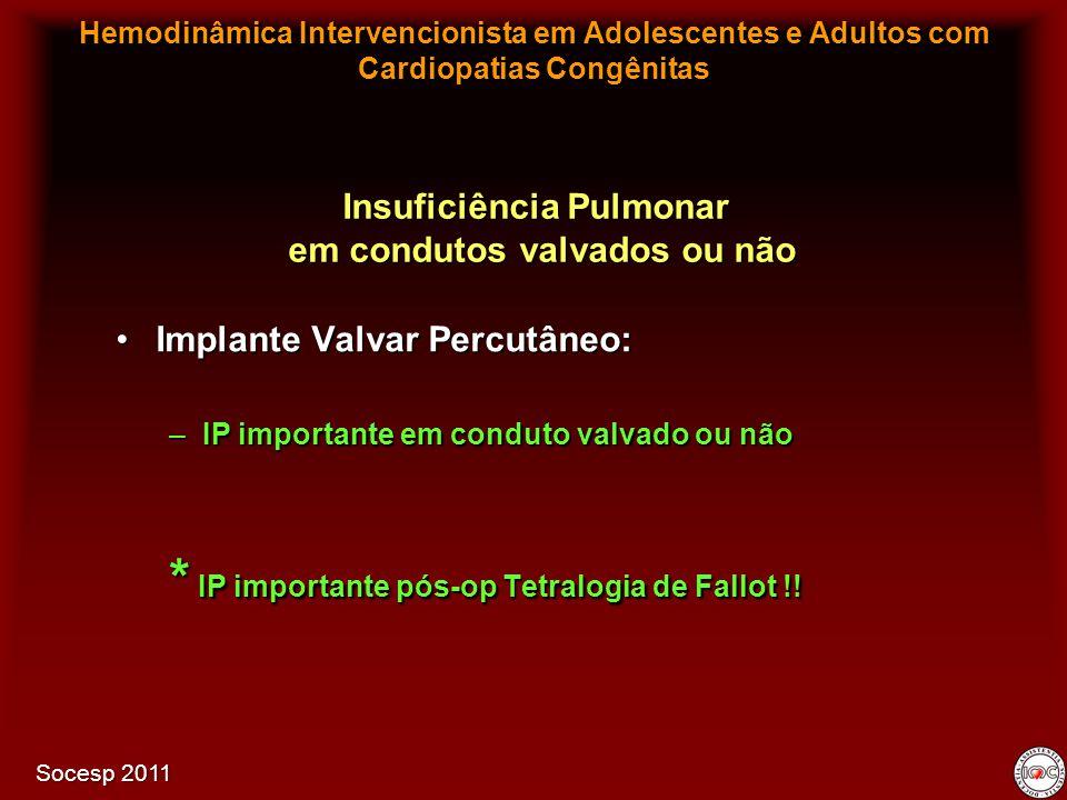 Implante Valvar Percutâneo:Implante Valvar Percutâneo: –IP importante em conduto valvado ou não * IP importante pós-op Tetralogia de Fallot !! Insufic