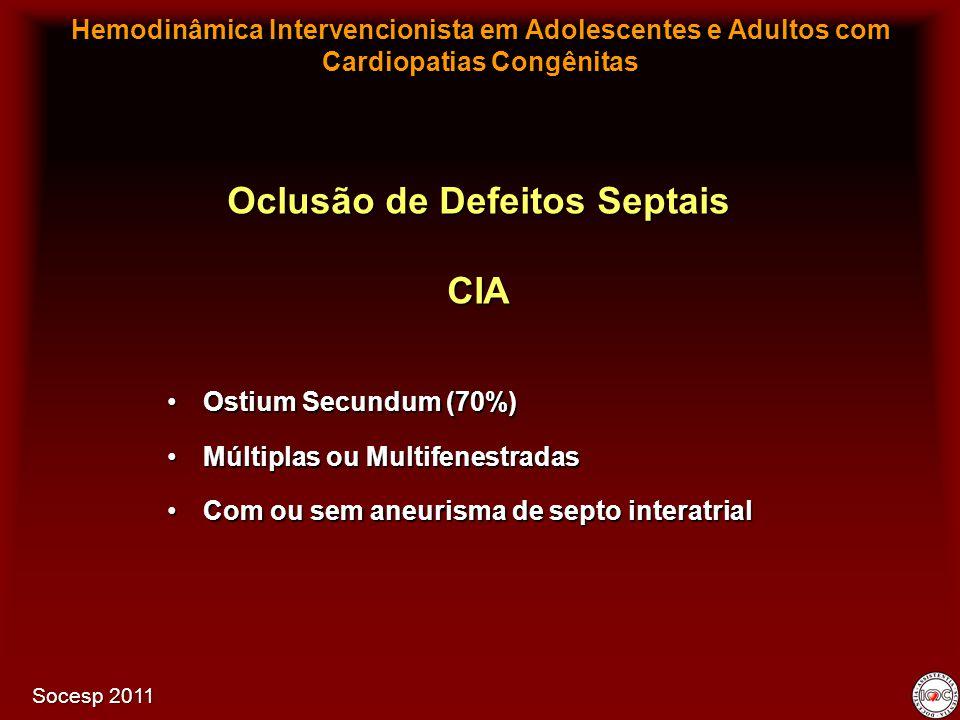Ostium Secundum (70%)Ostium Secundum (70%) Múltiplas ou MultifenestradasMúltiplas ou Multifenestradas Com ou sem aneurisma de septo interatrialCom ou