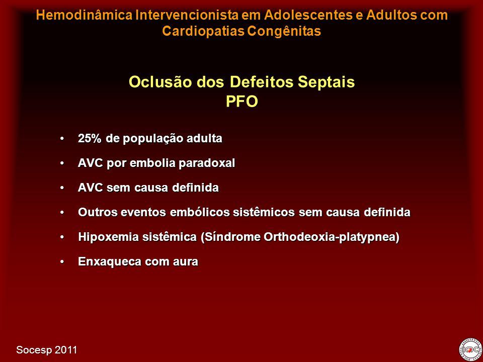 25% de população adulta25% de população adulta AVC por embolia paradoxalAVC por embolia paradoxal AVC sem causa definidaAVC sem causa definida Outros