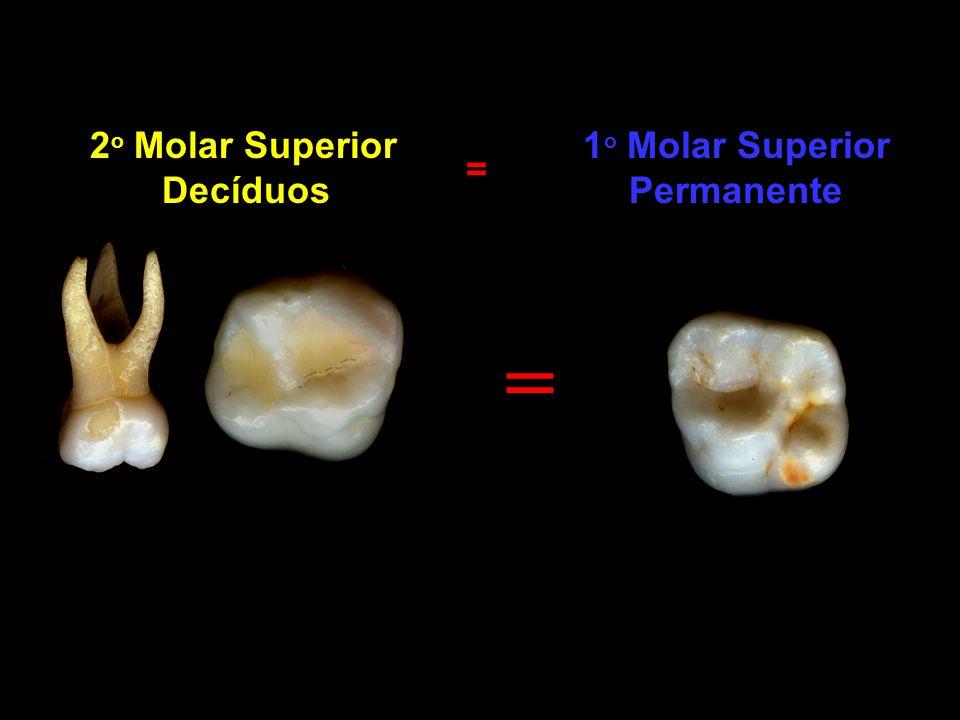 2 o Molar Superior Decíduos 1 o Molar Superior Permanente = =
