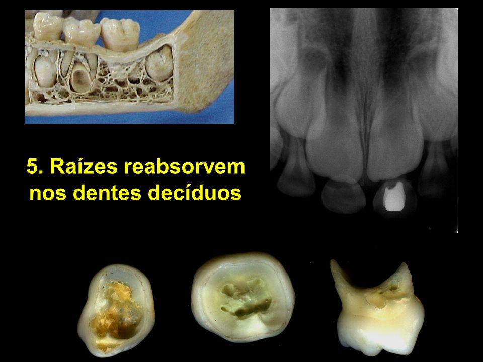 5. Raízes reabsorvem nos dentes decíduos