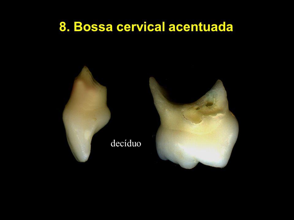 8. Bossa cervical acentuada decíduo