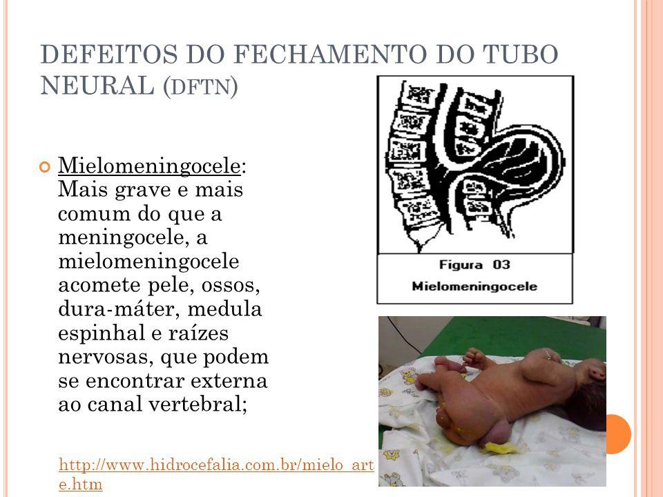 DEFEITOS DO FECHAMENTO DO TUBO NEURAL ( DFTN ) Mielomeningocele: Mais grave e mais comum do que a meningocele, a mielomeningocele acomete pele, ossos, dura-máter, medula espinhal e raízes nervosas, que podem se encontrar externa ao canal vertebral; http://www.hidrocefalia.com.br/mielo_art e.htm