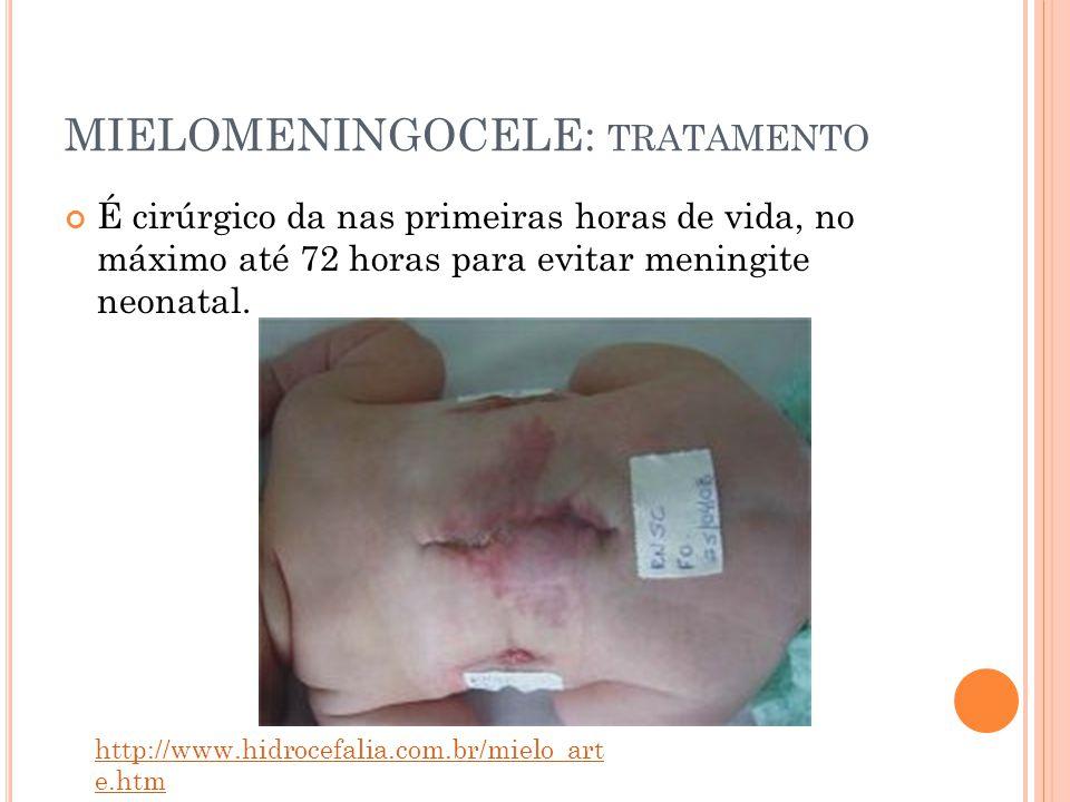 MIELOMENINGOCELE: TRATAMENTO É cirúrgico da nas primeiras horas de vida, no máximo até 72 horas para evitar meningite neonatal.