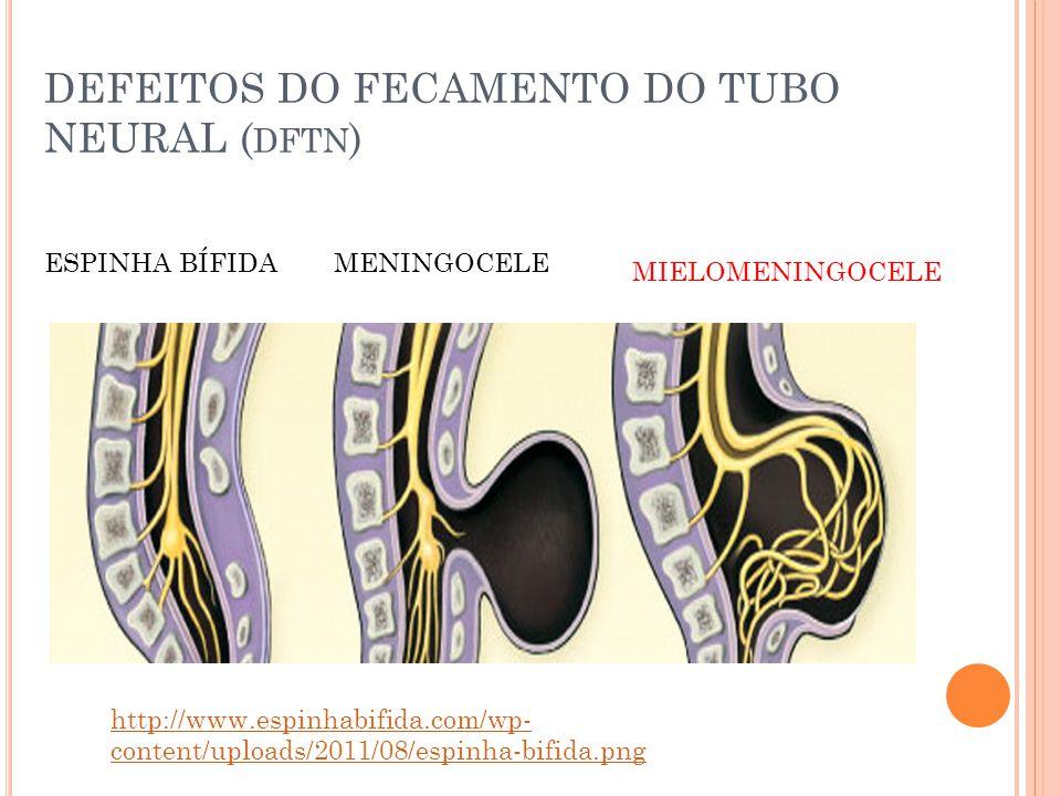 DEFEITOS DO FECAMENTO DO TUBO NEURAL ( DFTN ) MENINGOCELEESPINHA BÍFIDA MIELOMENINGOCELE http://www.espinhabifida.com/wp- content/uploads/2011/08/espinha-bifida.png