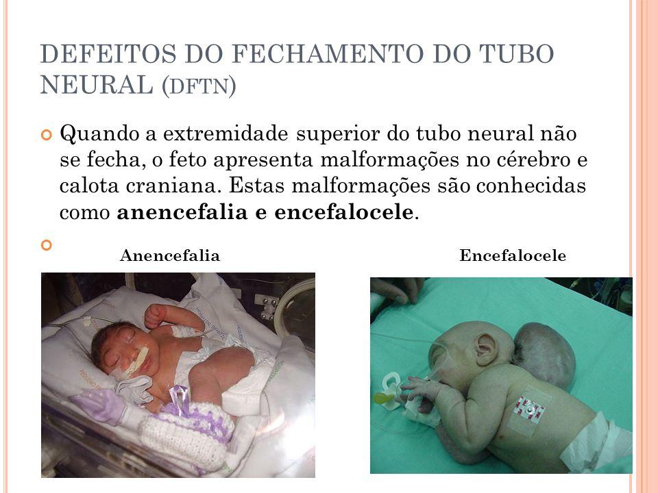 DEFEITOS DO FECHAMENTO DO TUBO NEURAL ( DFTN ) Quando a extremidade superior do tubo neural não se fecha, o feto apresenta malformações no cérebro e calota craniana.