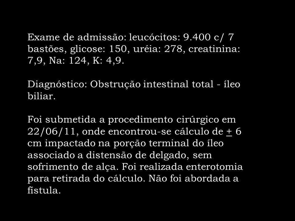 Exame de admissão: leucócitos: 9.400 c/ 7 bastões, glicose: 150, uréia: 278, creatinina: 7,9, Na: 124, K: 4,9. Diagnóstico: Obstrução intestinal total