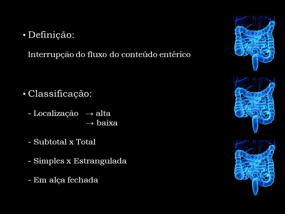 Definição: Interrupção do fluxo do conteúdo entérico Classificação: - Localização alta baixa - Subtotal x Total - Simples x Estrangulada - Em alça fec