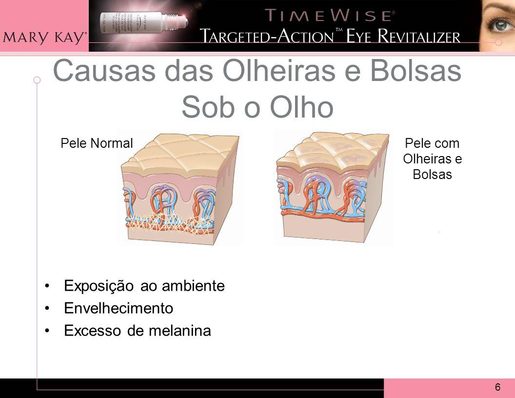 6 Causas das Olheiras e Bolsas Sob o Olho Pele com Olheiras e Bolsas Pele Normal Exposição ao ambiente Envelhecimento Excesso de melanina
