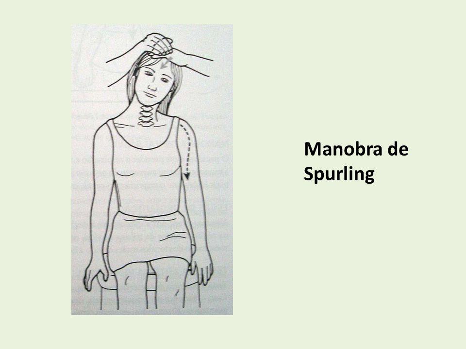 Manobra de Spurling