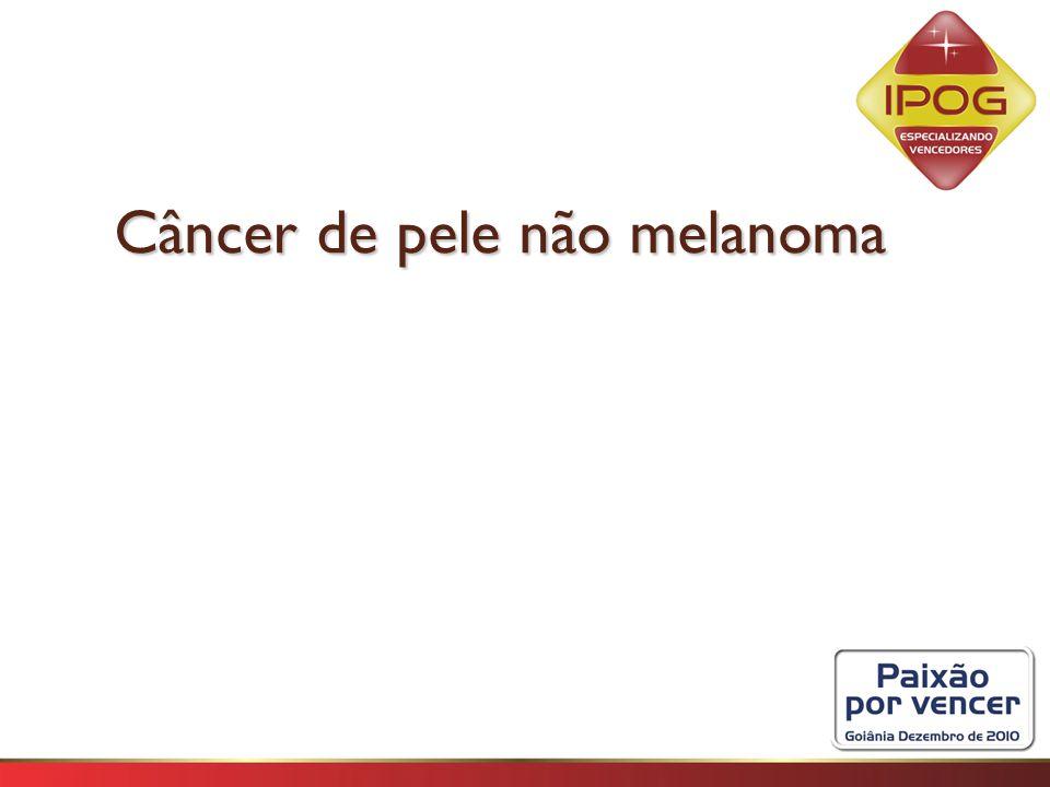 Câncer de pele não melanoma