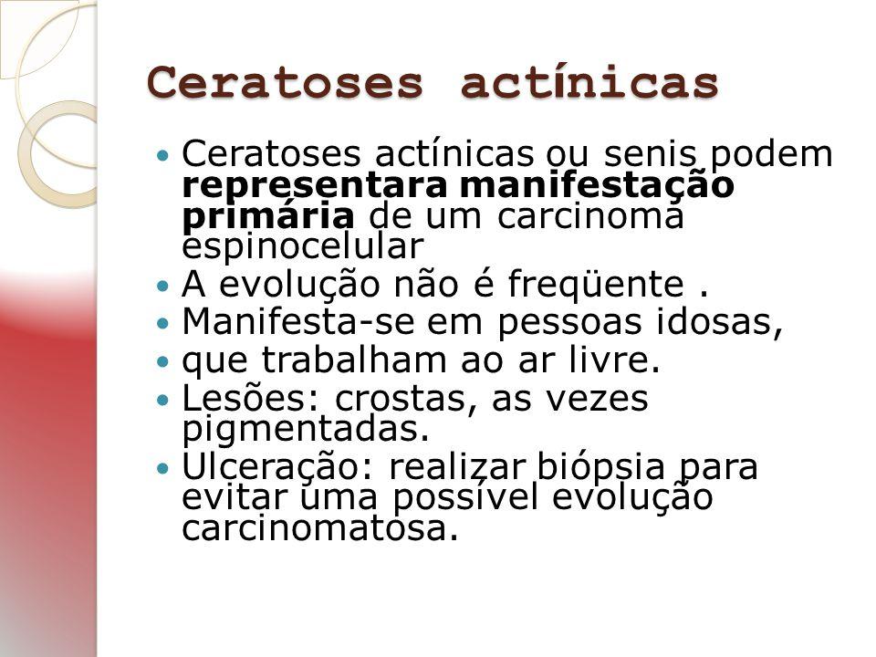 Ceratoses act í nicas Ceratoses actínicas ou senis podem representara manifestação primária de um carcinoma espinocelular A evolução não é freqüente.