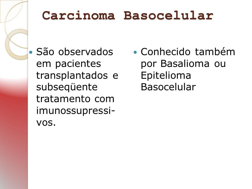 Carcinoma Basocelular São observados em pacientes transplantados e subseqüente tratamento com imunossupressi- vos. Conhecido também por Basalioma ou E
