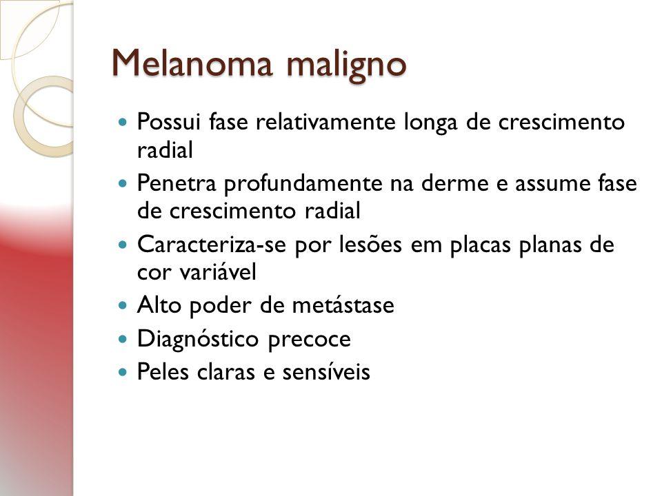 Melanoma maligno Possui fase relativamente longa de crescimento radial Penetra profundamente na derme e assume fase de crescimento radial Caracteriza-