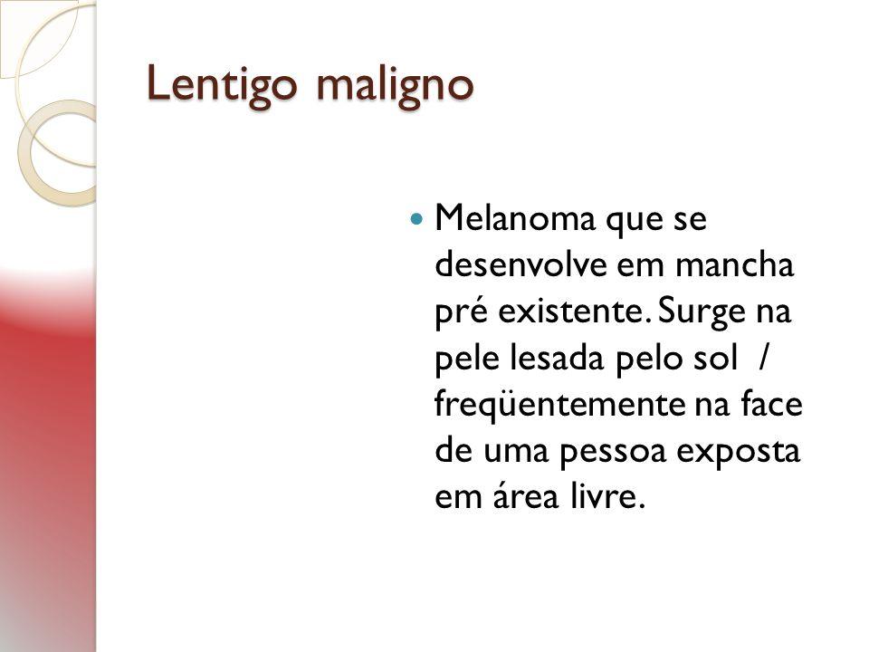 Lentigo maligno Melanoma que se desenvolve em mancha pré existente. Surge na pele lesada pelo sol / freqüentemente na face de uma pessoa exposta em ár
