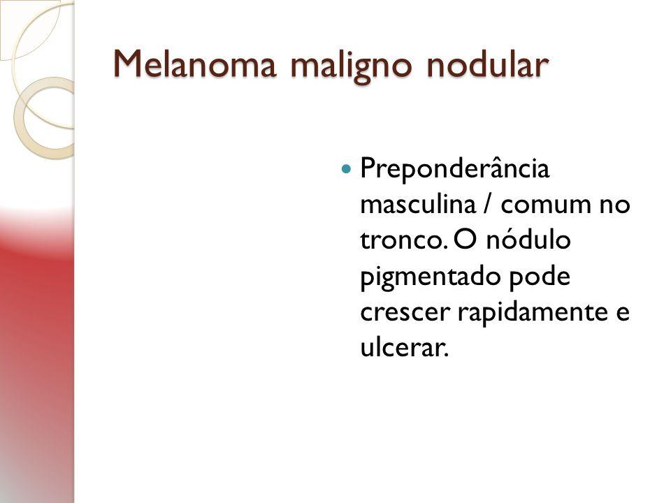 Melanoma maligno nodular Preponderância masculina / comum no tronco. O nódulo pigmentado pode crescer rapidamente e ulcerar.