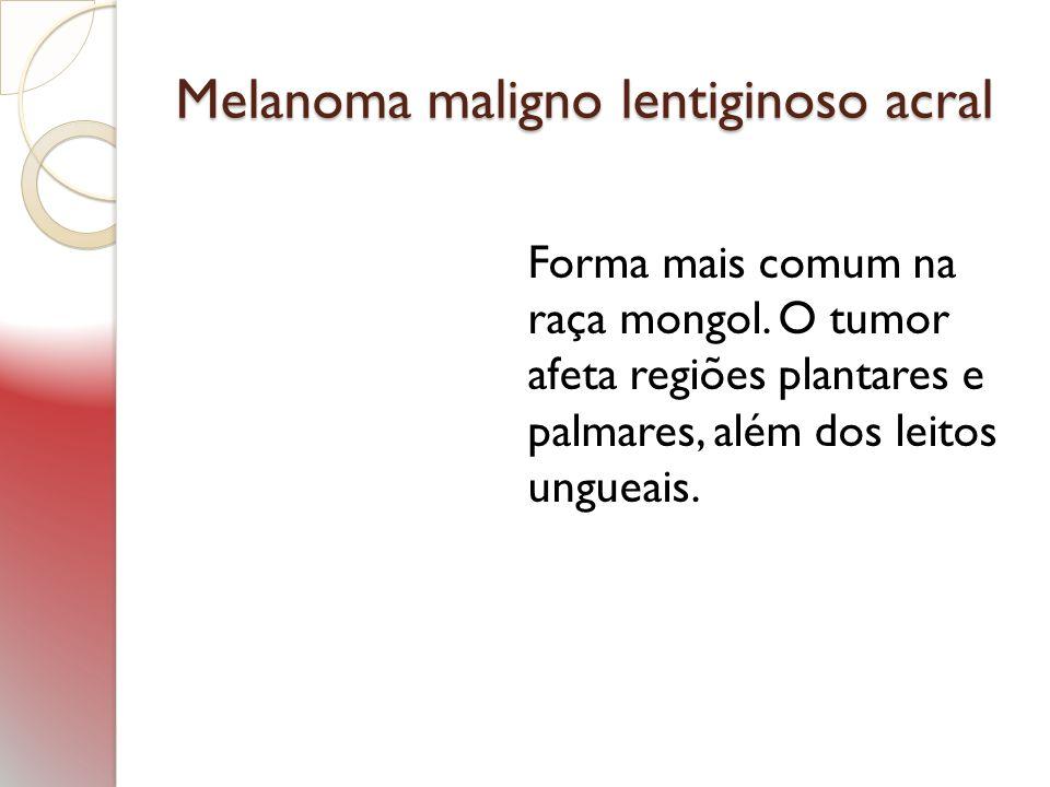 Melanoma maligno lentiginoso acral Forma mais comum na raça mongol. O tumor afeta regiões plantares e palmares, além dos leitos ungueais.