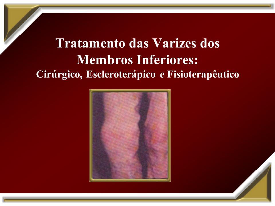 Tratamento das Varizes dos Membros Inferiores: Cirúrgico, Escleroterápico e Fisioterapêutico