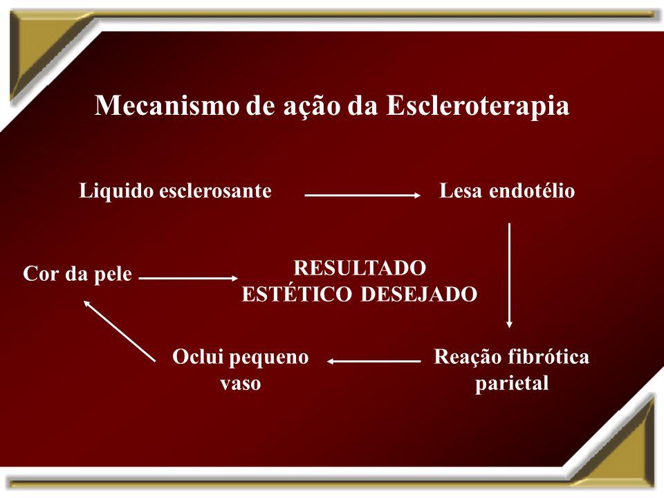 Mecanismo de ação da Escleroterapia Liquido esclerosante Lesa endotélio Oclui pequeno vaso Reação fibrótica parietal Cor da pele RESULTADO ESTÉTICO DE