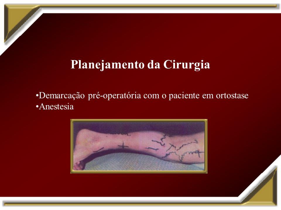 Demarcação pré-operatória com o paciente em ortostase Anestesia Planejamento da Cirurgia