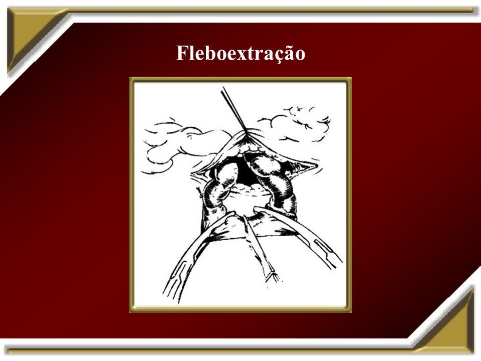 Fleboextração com safenectomia