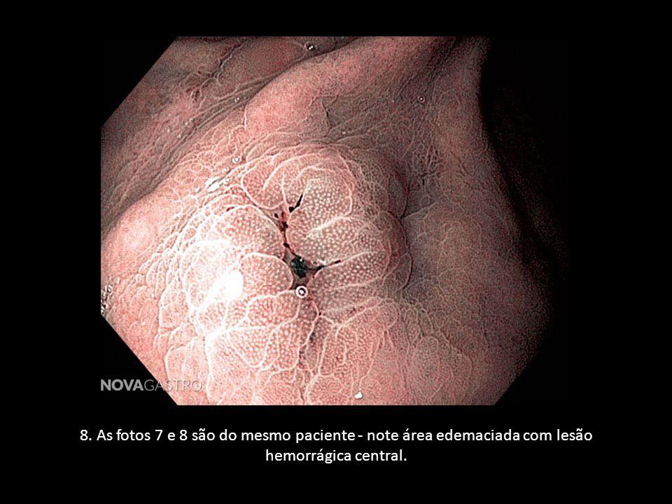 8. As fotos 7 e 8 são do mesmo paciente - note área edemaciada com lesão hemorrágica central.