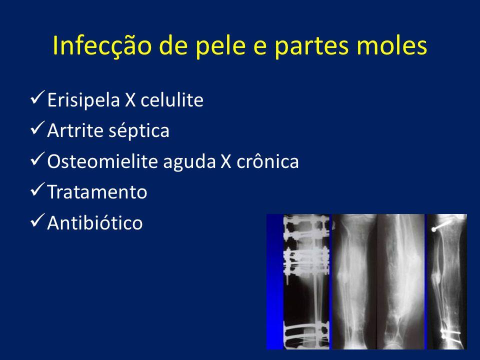 Infecção de pele e partes moles Erisipela X celulite Artrite séptica Osteomielite aguda X crônica Tratamento Antibiótico
