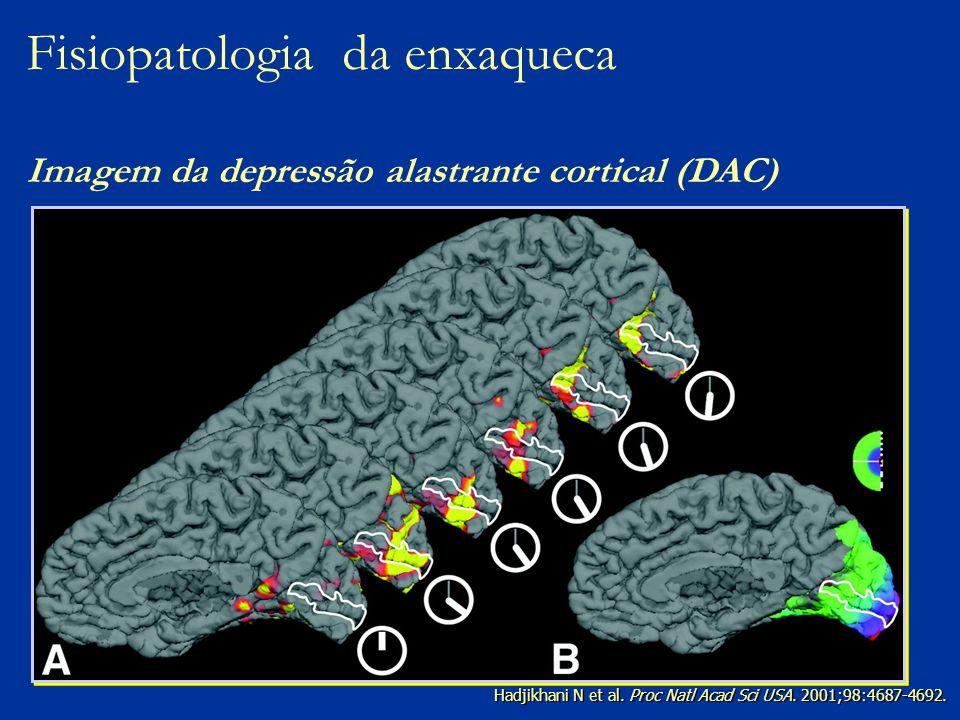 Hadjikhani N et al. Proc Natl Acad Sci USA. 2001;98:4687-4692. Fisiopatologia da enxaqueca Imagem da depressão alastrante cortical (DAC)