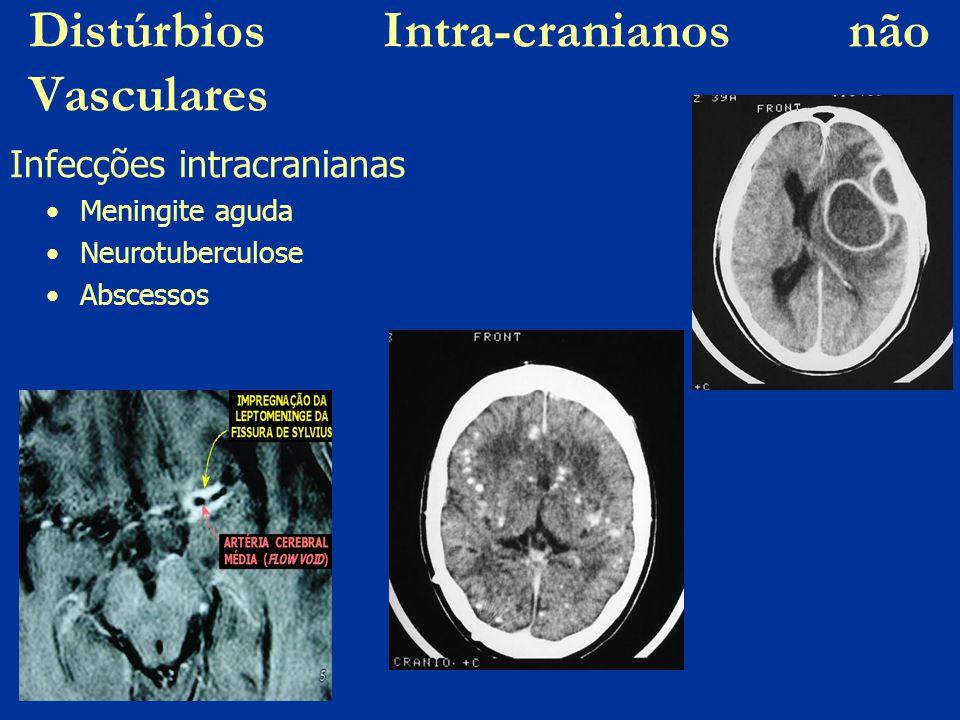 Distúrbios Intra-cranianos não Vasculares Infecções intracranianas Meningite aguda Neurotuberculose Abscessos