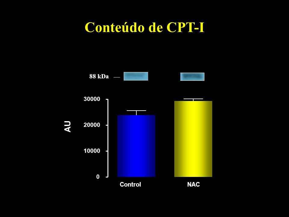 Conteúdo de CPT-I 0 10000 20000 30000 AU ControlNAC 88 kDa