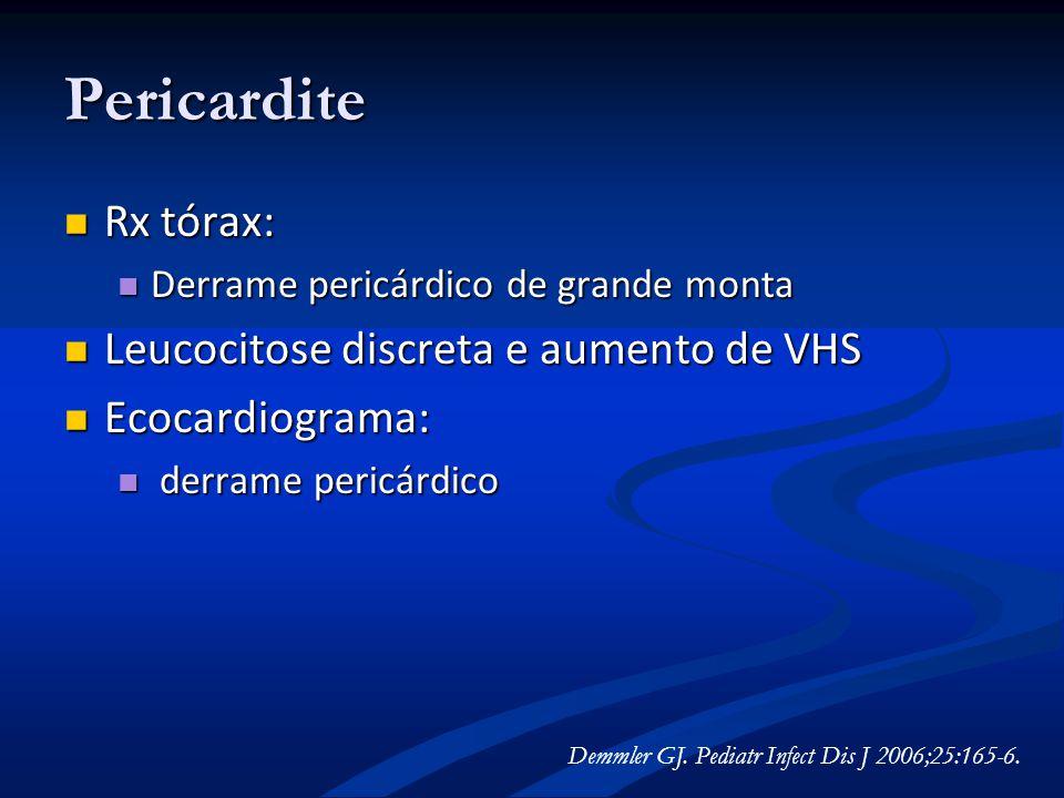 Pericardite Rx tórax: Rx tórax: Derrame pericárdico de grande monta Derrame pericárdico de grande monta Leucocitose discreta e aumento de VHS Leucocit