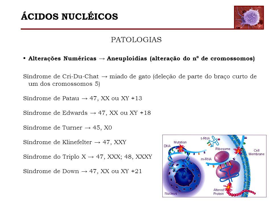 Alterações Numéricas Aneuploidias (alteração do nº de cromossomos) Síndrome de Cri-Du-Chat miado de gato (deleção de parte do braço curto de um dos cr