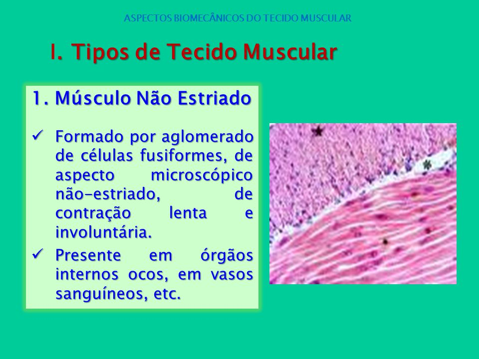 1. Músculo Não Estriado Formado por aglomerado de células fusiformes, de aspecto microscópico não-estriado, de contração lenta e involuntária. Formado