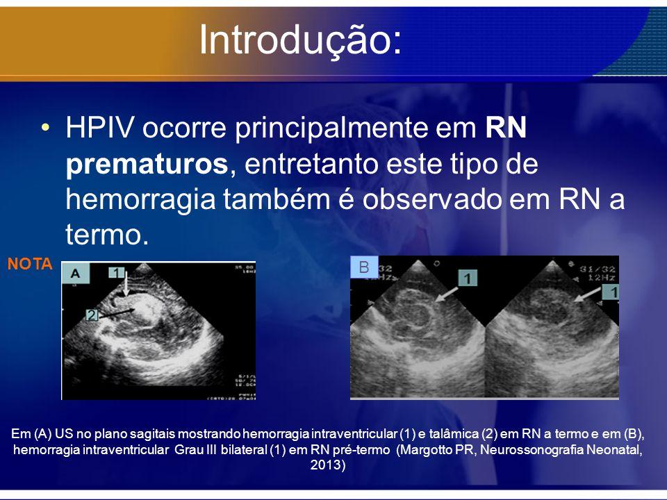 Introdução: HPIV ocorre principalmente em RN prematuros, entretanto este tipo de hemorragia também é observado em RN a termo. Em (A) US no plano sagit