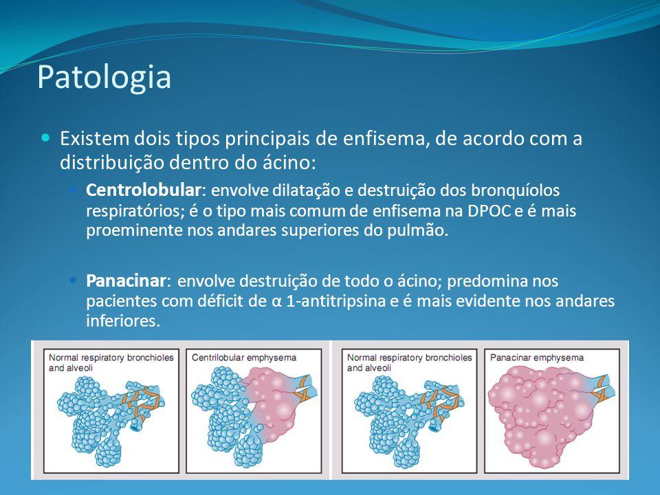 Patologia Existem dois tipos principais de enfisema, de acordo com a distribuição dentro do ácino: Centrolobular : envolve dilatação e destruição dos bronquíolos respiratórios; é o tipo mais comum de enfisema na DPOC e é mais proeminente nos andares superiores do pulmão.