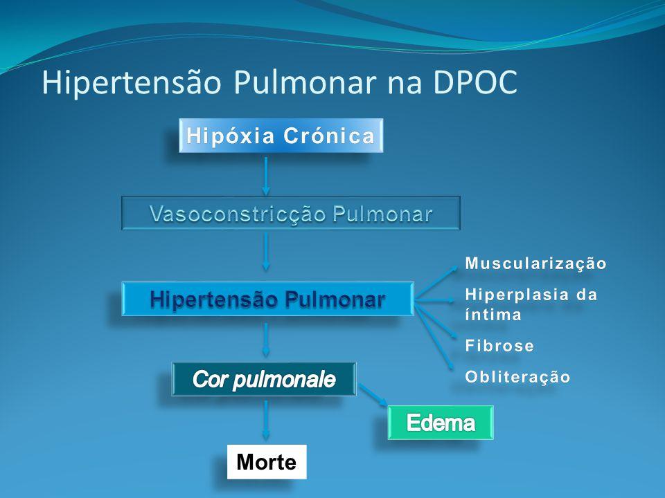 Morte Hipertensão Pulmonar na DPOC