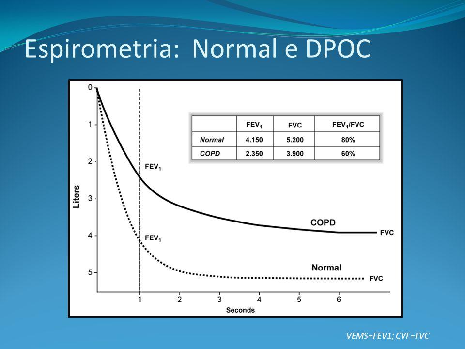 Espirometria: Normal e DPOC VEMS=FEV1; CVF=FVC