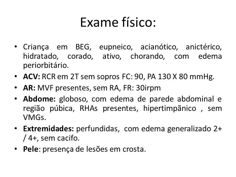 Exames Laboratoriais: EAS 18/07/2009 – Densidade: 1030 – pH: 6,5 – Proteínas: ++ – Hemoglobina: traços – CED: 3 p/c – Leucócitos: 20 p/c – Hemácias: 10 p/c – Cilindros hialinos: + – Flora bacteriana: + – Muco: +++