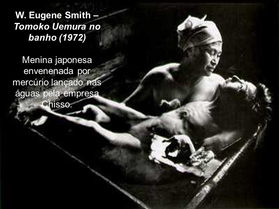 W. Eugene Smith – Tomoko Uemura no banho (1972) Menina japonesa envenenada por mercúrio lançado nas águas pela empresa Chisso.
