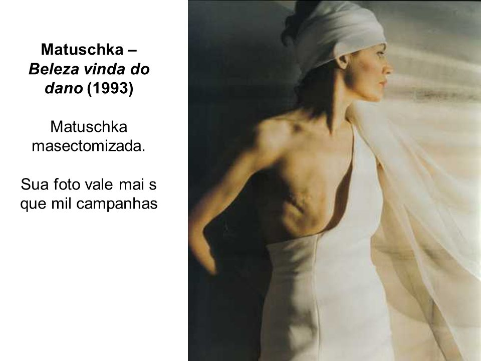 Matuschka – Beleza vinda do dano (1993) Matuschka masectomizada. Sua foto vale mai s que mil campanhas