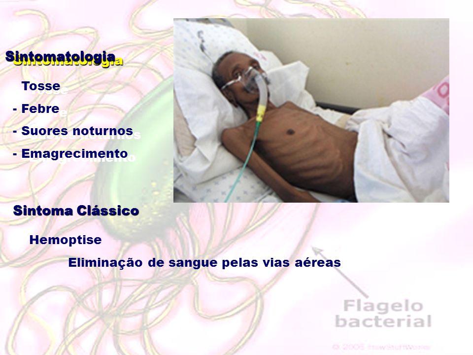 Sintomatologia - Tosse - Febre - Suores noturnos - Emagrecimento Sintoma Clássico - Hemoptise Eliminação de sangue pelas vias aéreas Sintomatologia -