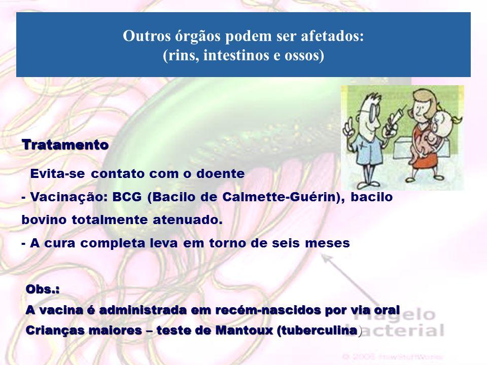 Outros órgãos podem ser afetados: (rins, intestinos e ossos)Tratamento - Evita-se contato com o doente - Vacinação: BCG (Bacilo de Calmette-Guérin), b