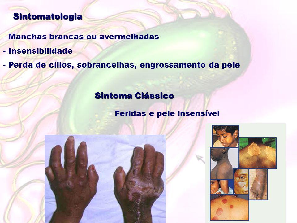 Sintomatologia - Manchas brancas ou avermelhadas - Insensibilidade - Perda de cílios, sobrancelhas, engrossamento da pele Sintoma Clássico - Feridas e