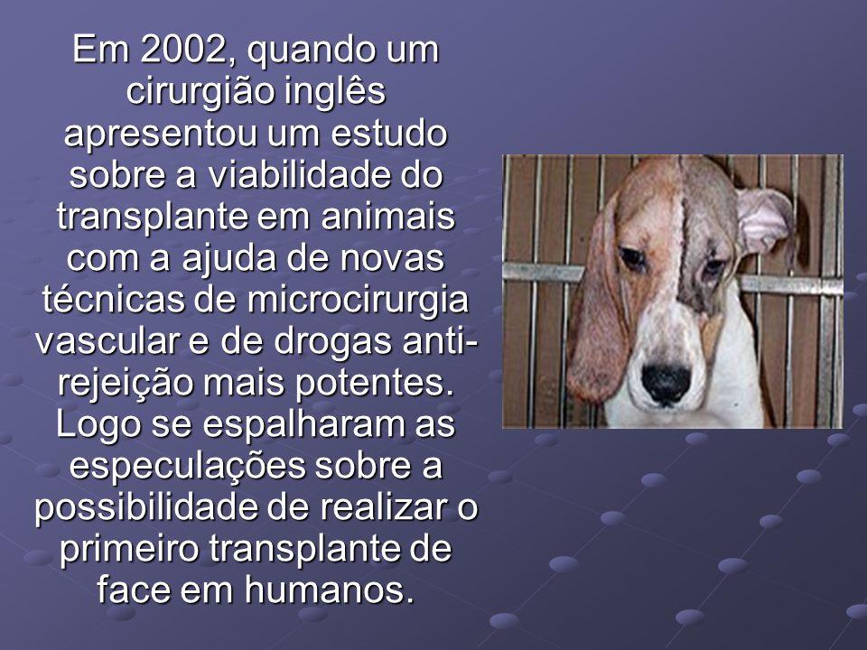Em 2002, quando um cirurgião inglês apresentou um estudo sobre a viabilidade do transplante em animais com a ajuda de novas técnicas de microcirurgia